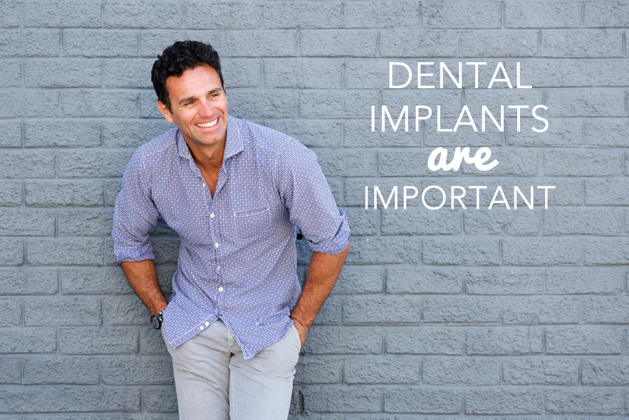 dental implants are important