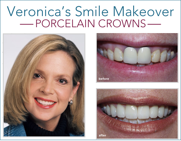 porcelain crowns ft worth