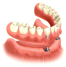 Example of an overdenture anchored by two implants.