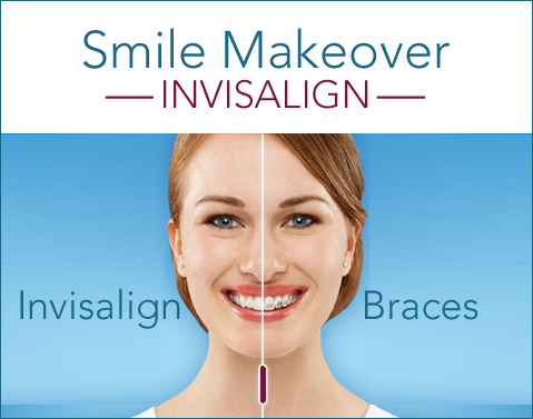 Invisalign Ft Worth - Clear Braces | Brit Phillps DDS