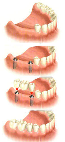 replace several missing teeth