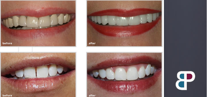 Dental Smile Makeover Fort Worth - Before and After Photos
