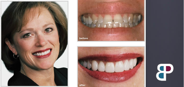 before and after cosmetic dentistry patient