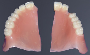 denture repairs fort worth