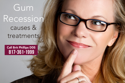 gum-recession-causes-and-treatments