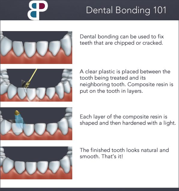 bonding dentist fort worth