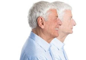 denture facial rejuvenation