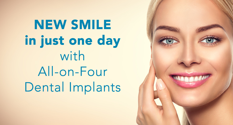 New Smile in One Day with Implants