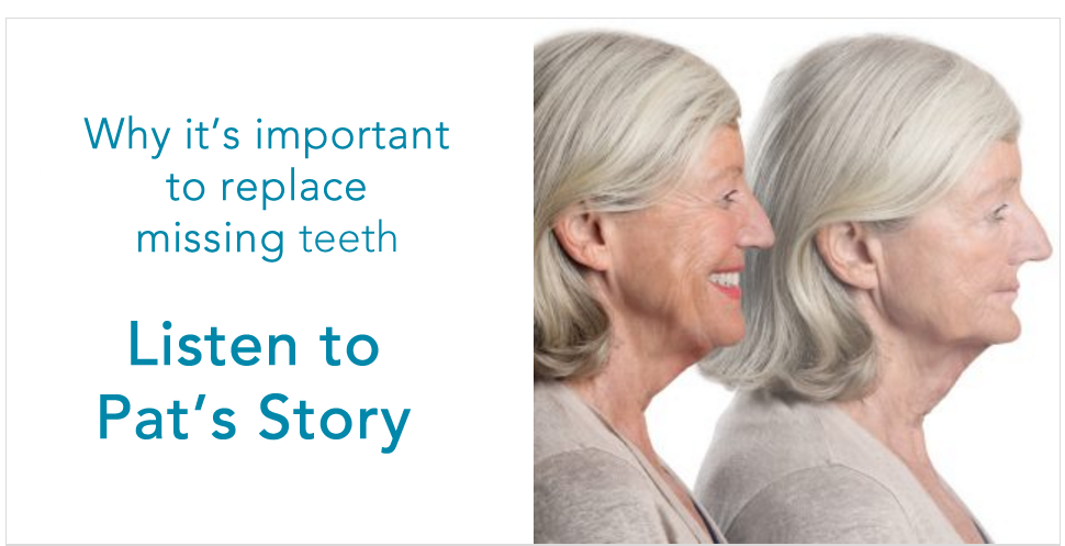 The Necessity of Replacing Missing Teeth