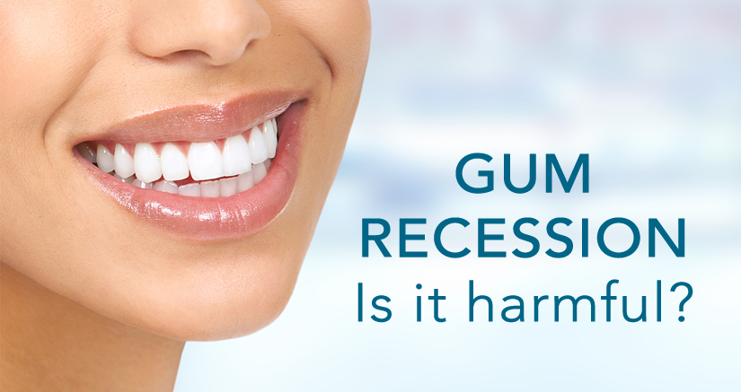 Is Gum Recession Harmful?