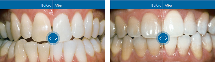 zoom whitening ft worth