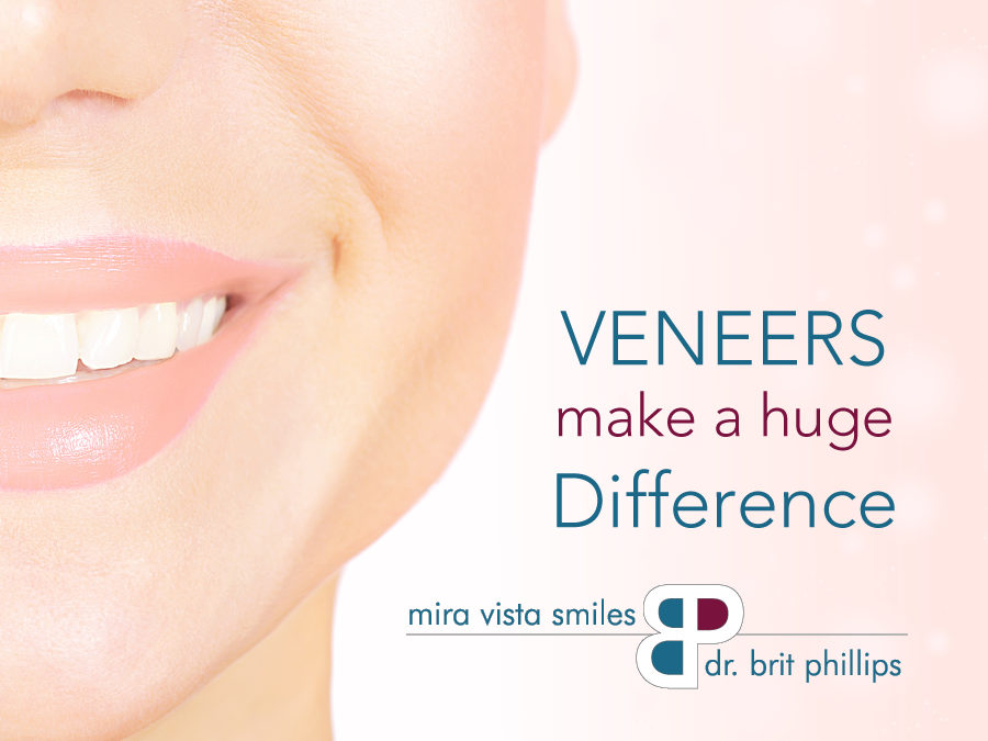 Veneers Make a Huge Difference