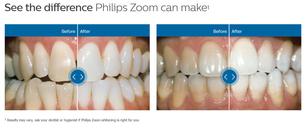 Unleash a whiter, healthy smile with Philips Zoom professional teeth whitening!