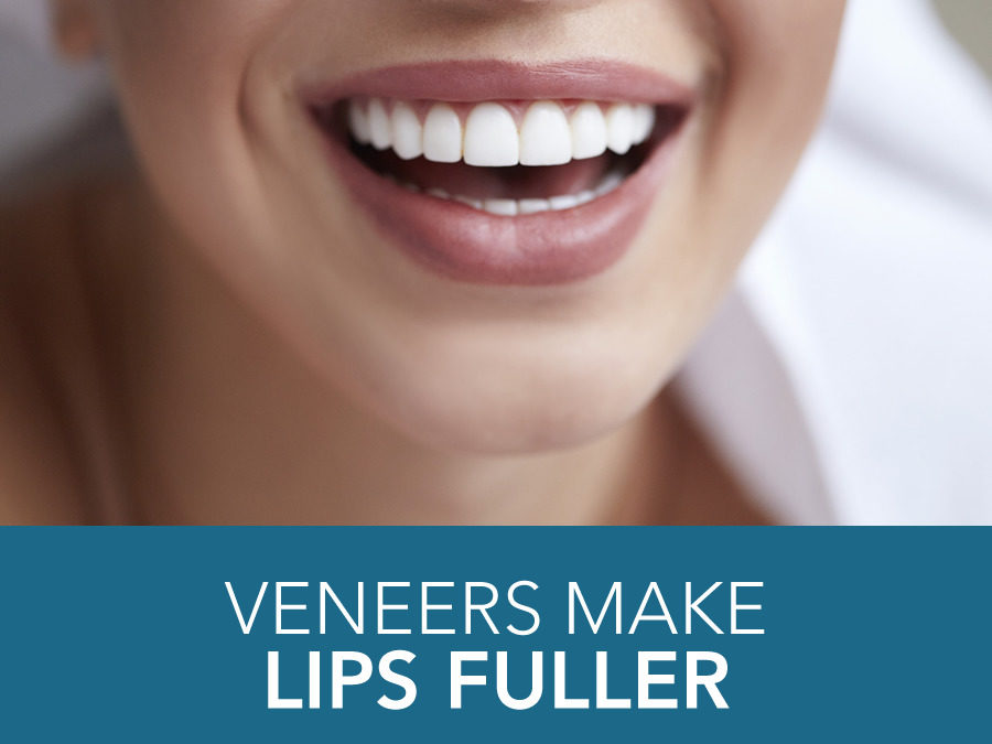 Veneers Make Lips Fuller
