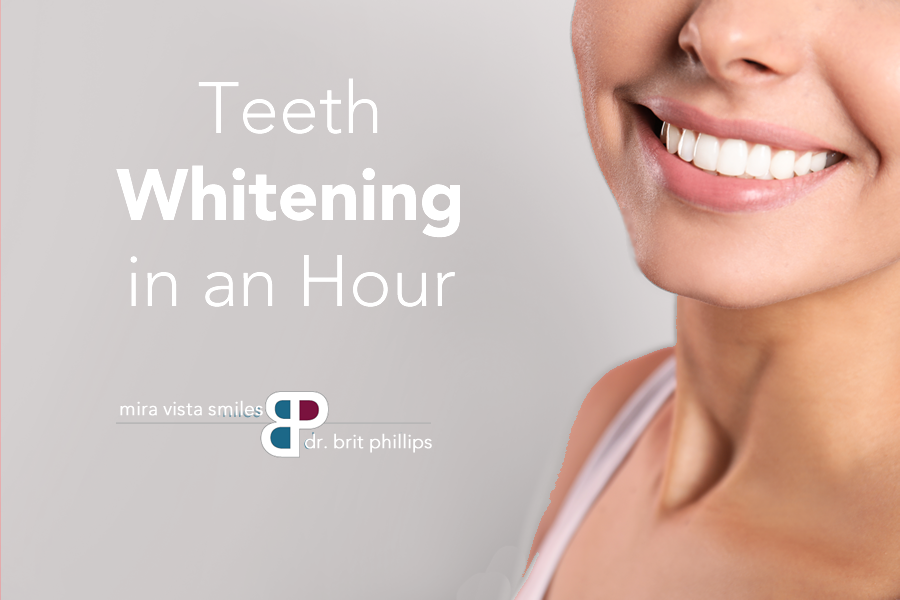 Zoom Whitening in Fort Worth