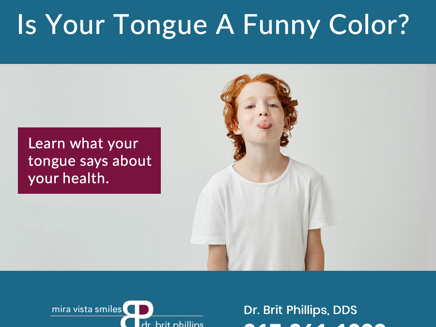The Color Of Your Tongue Can Tell About Your Health